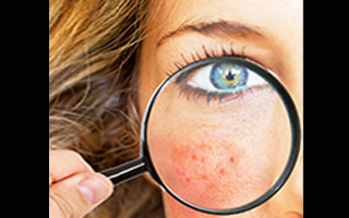 A surprising cause of rosacea and acne on your cheeks